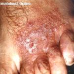 eczema_ctto