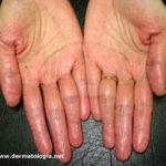 eczema_maos2