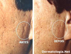 preenchimento de cicatrizes de acne