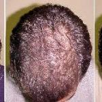 alopécia androgenética, calvície