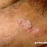 verruga genital
