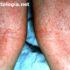 dermatopic