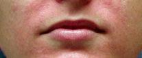 dermatite perioral