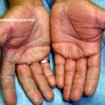 eczema_maos3