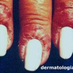 eczemaesmalte