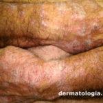 farmacodermia5