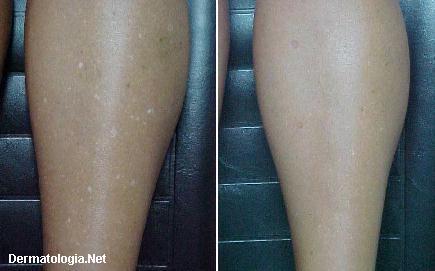 sardas brancas - leucodermia gutata