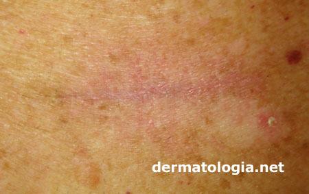 cicatriz pos cirurgia do melanoma