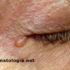 hidrocistoma2