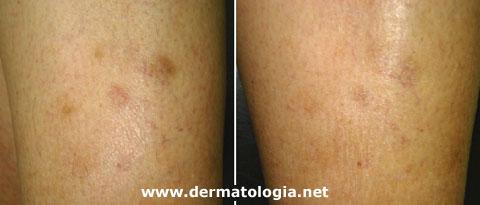 hiperpigmentação pós-inflamatória