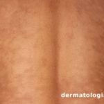 hipomelanose macular progressiva