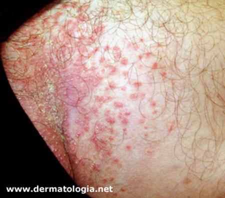 Alergia na virilha fotos 56
