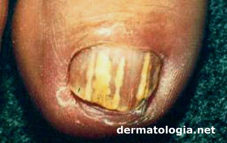 Acne In Hair >> Onicomicose - Dermatologia.netDermatologia.net