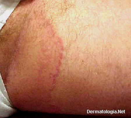 Alergia na virilha fotos 48