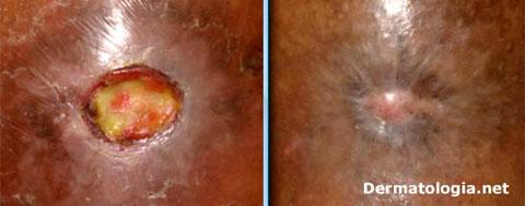 úlcera venosa